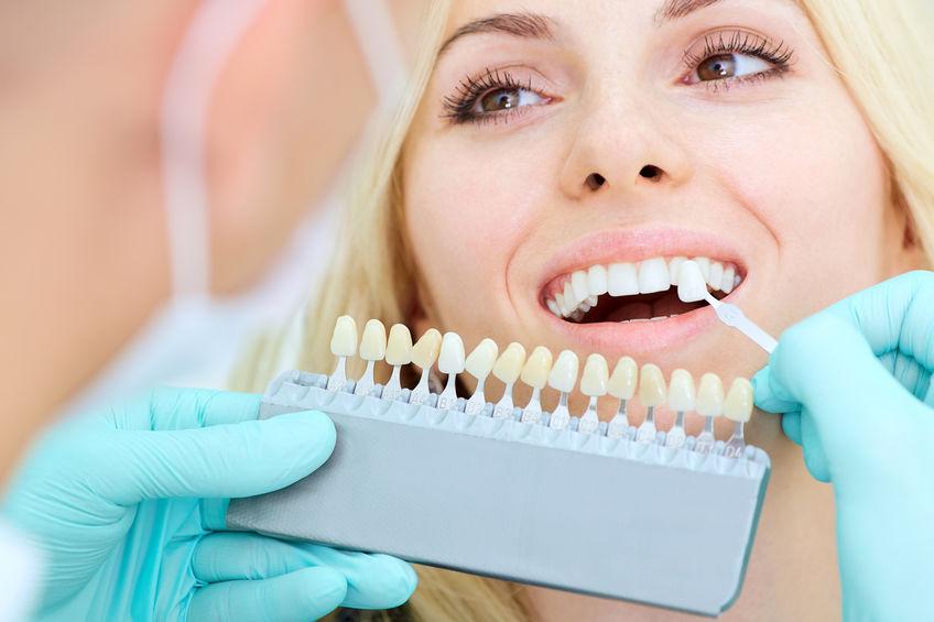 Consejos para un blanqueamiento dental